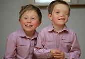 英国7岁男童天生仅有