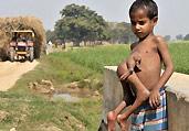 印度男孩腹部长出连体