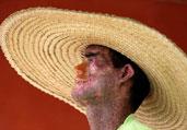 巴西一男子皮肤见阳光